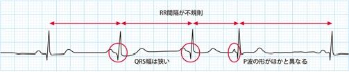 心房性期外収縮(PAC)の心電図波形