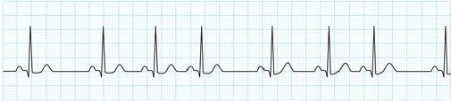 洞性不整脈の心電図波形