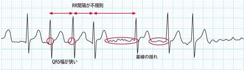 心房細動の心電図波形