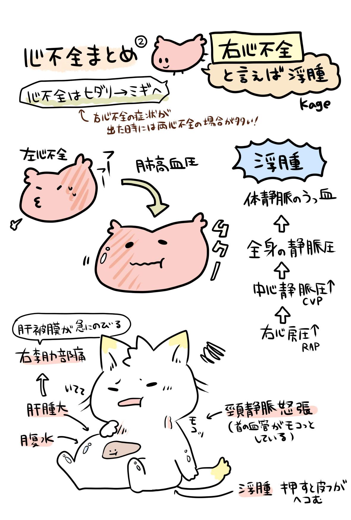 心不全についての説明図(右心不全)