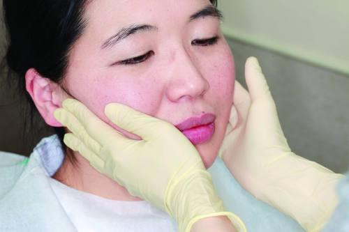 人差し指から小指まで頬に当て、上顎奥歯辺りの耳下腺を指の腹でゆっくり押す、実践写真