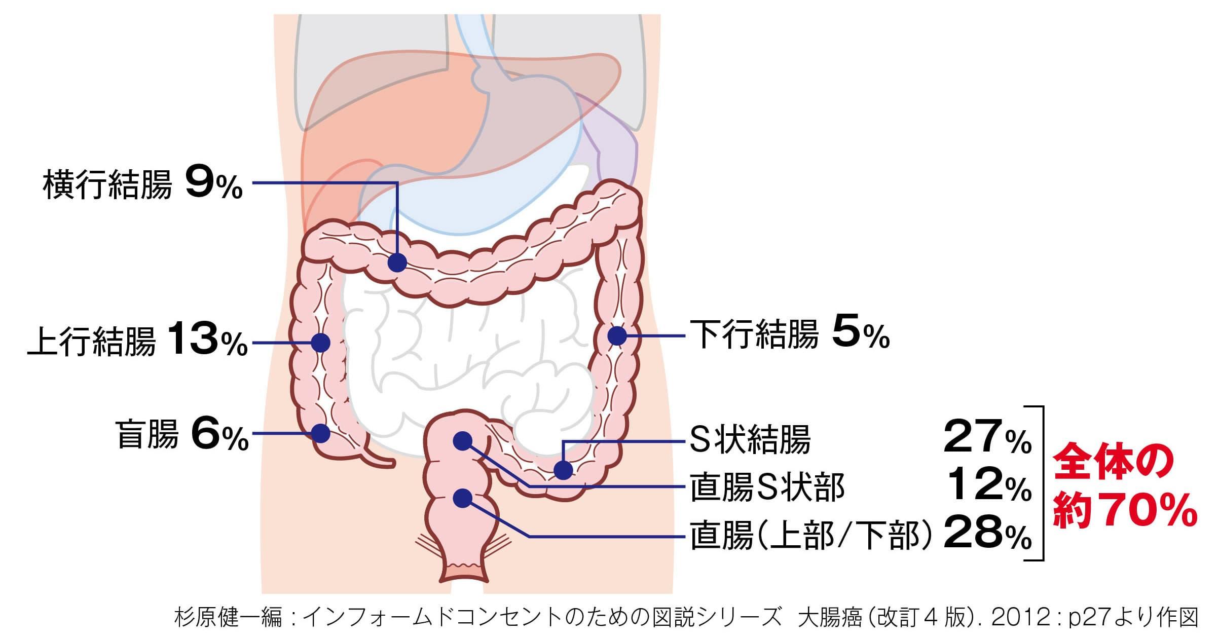 大腸がんの好発部位