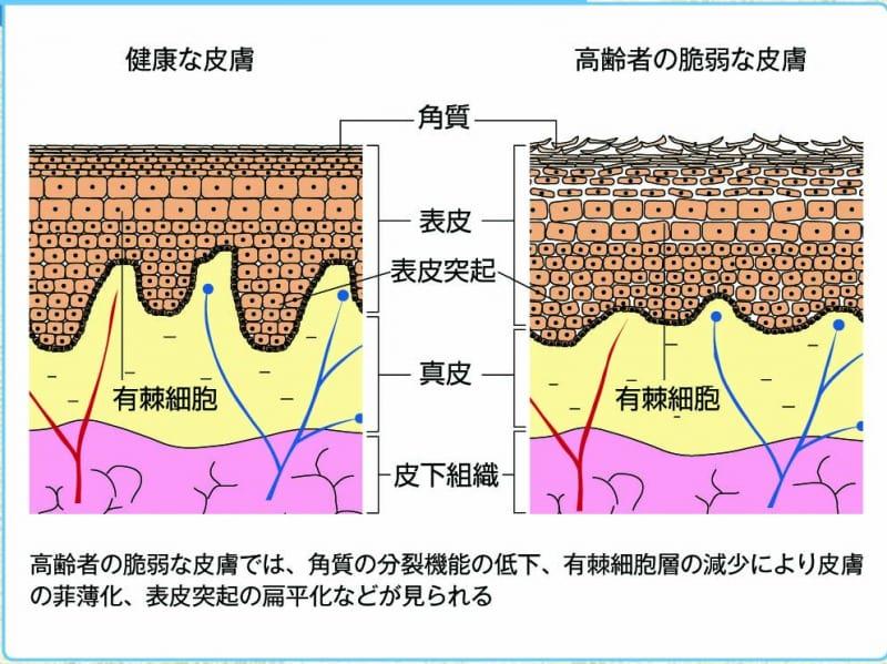 皮膚の構造説明図