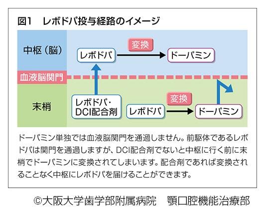 レボドパ投与経路のイメージ説明図