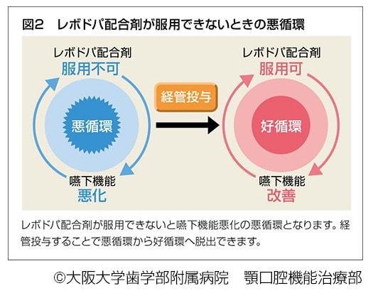 レボドパ配合剤が服用できないときの悪循環、説明図