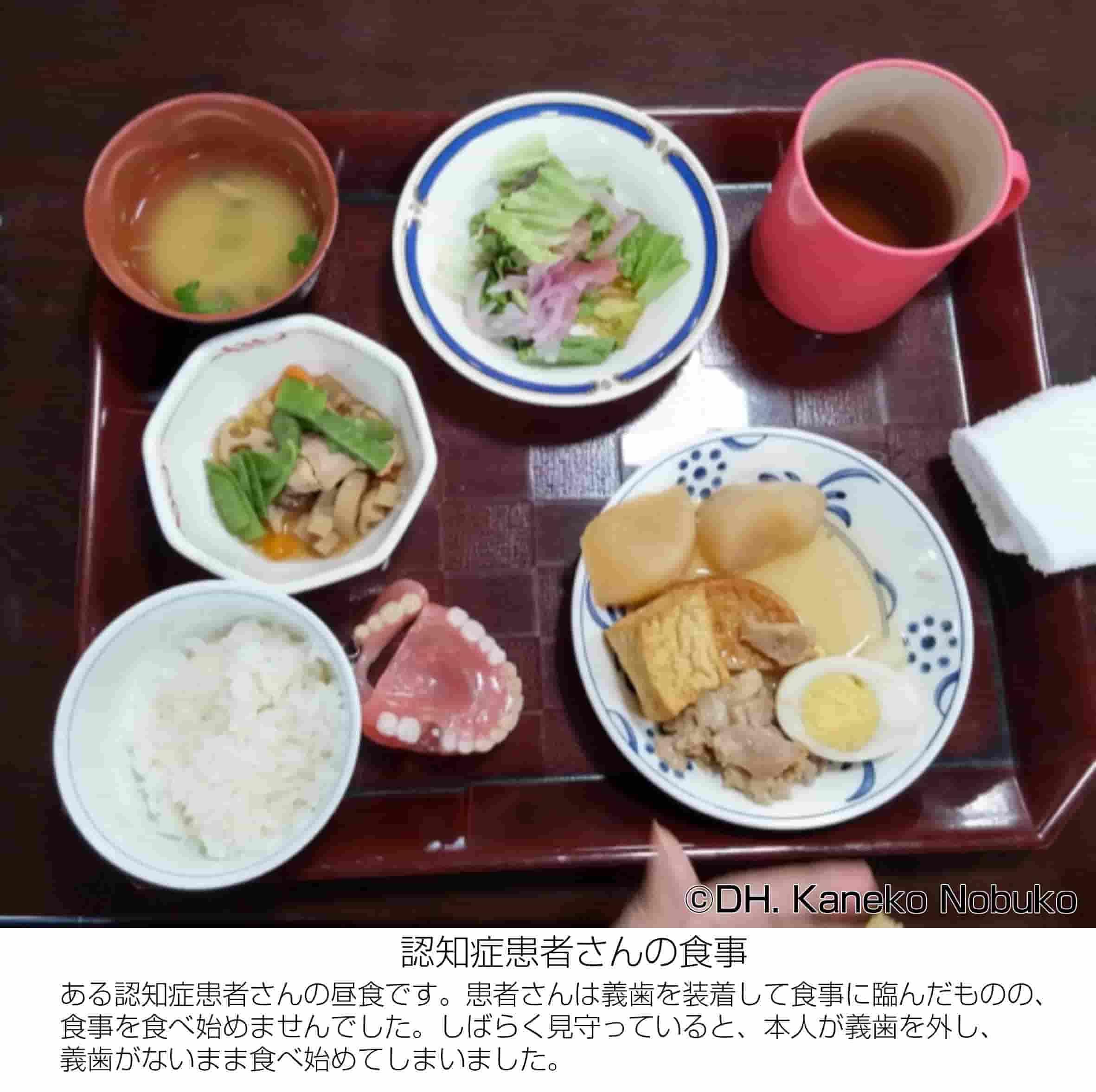 認知症患者さんの食事の写真