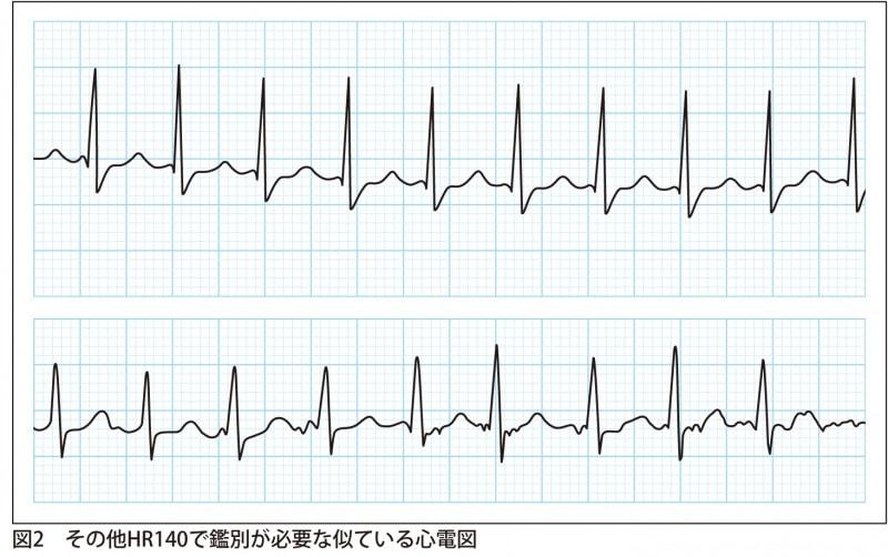 その他HR140で鑑別が必要な似ている心電図