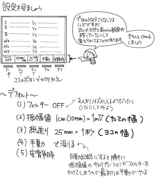 心電図計:設定のチェックポイント