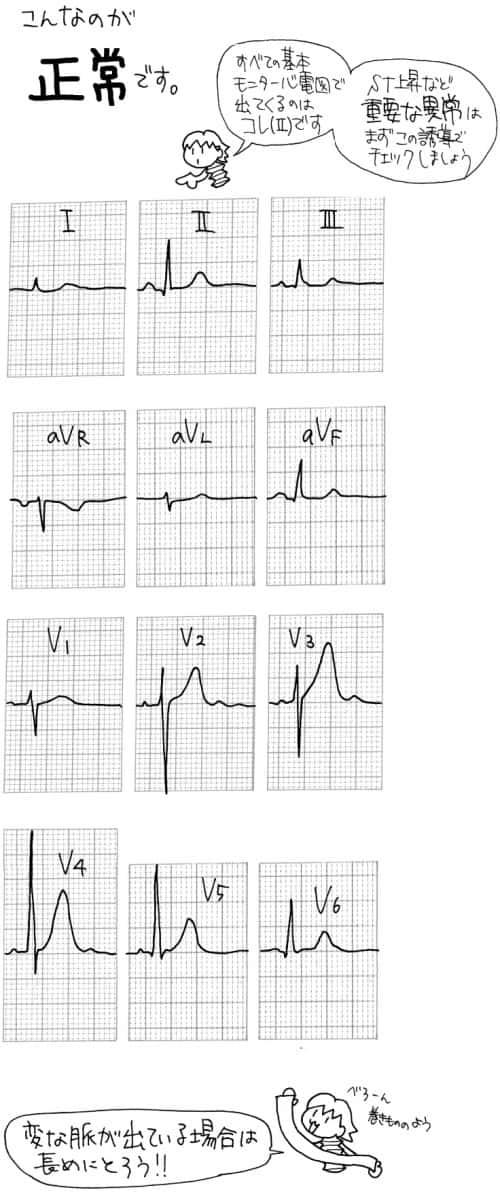 正常な心電図