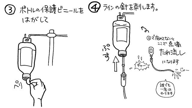 ボトルと輸液セットを接続する