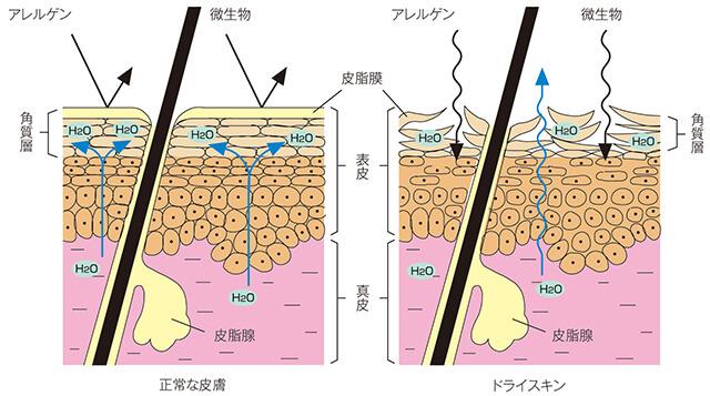 正常な皮膚とドライスキンのバリア機能