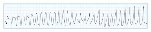 多形性心室頻拍