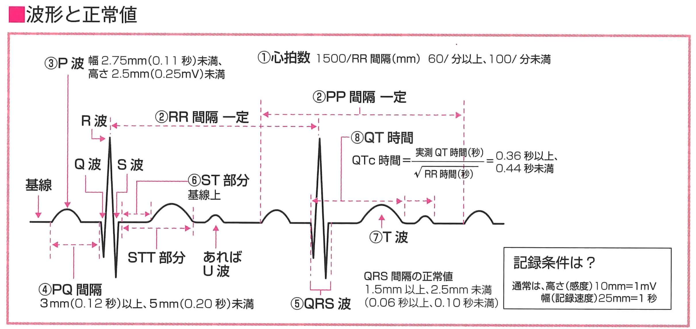 正常波形の名称と正常値