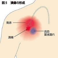 潰瘍の形成説明図