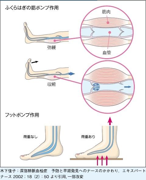 症状 初期 血栓 症