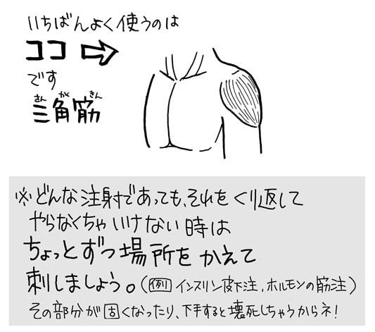 筋肉注射をする部位