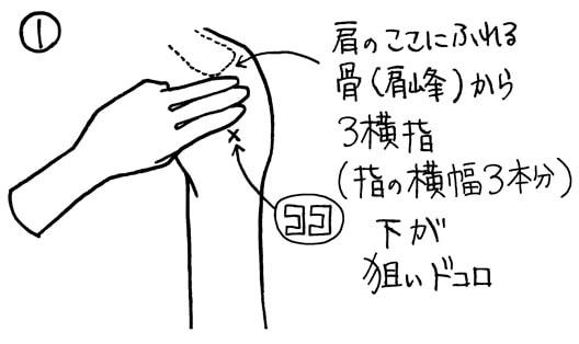 筋肉注射 穿刺部位を決めるコツ