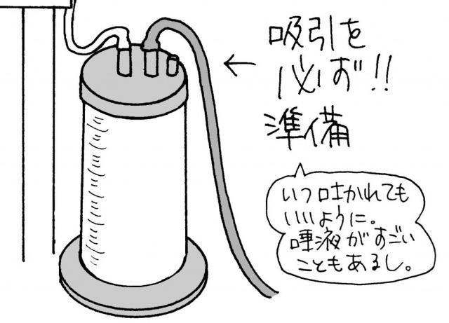 気管挿管に必要な吸引