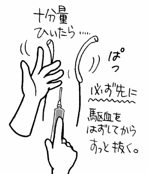 シリンジ採血における抜針のコツ・手順