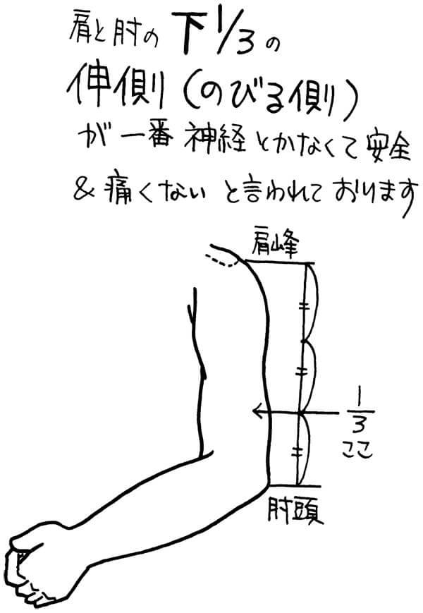 皮下注射の穿刺部位決定