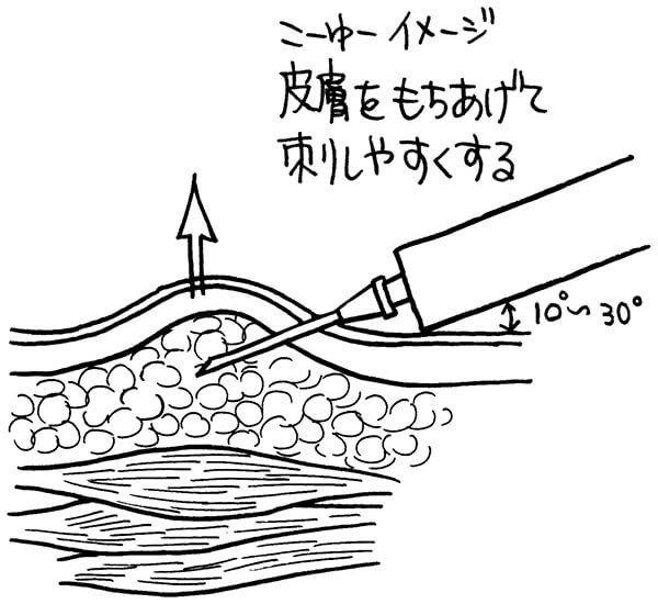皮下注射の穿刺の角度