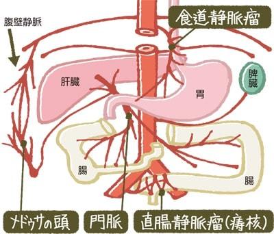 側副血行路のメカニズム説明図