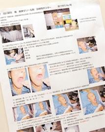嚥下訓練の手順を示すポスター