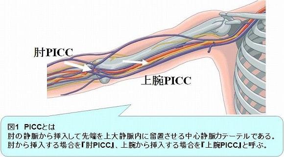 PICC説明図