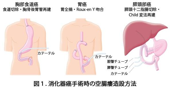 空腸瘻を造設説明図