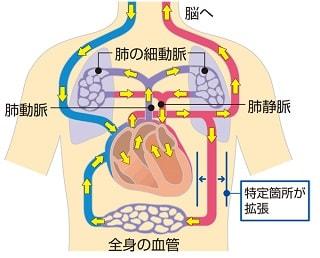 感染性ショックの仕組み説明図