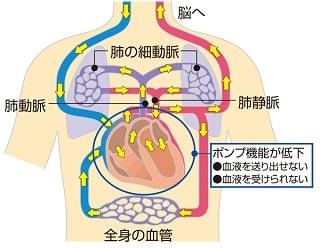 心原性ショックの仕組み説明図