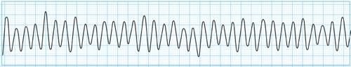 心電図でみる心室細動(Vf)の特徴