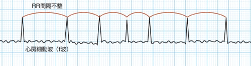 心電図でみる心房細動(Af)の特徴
