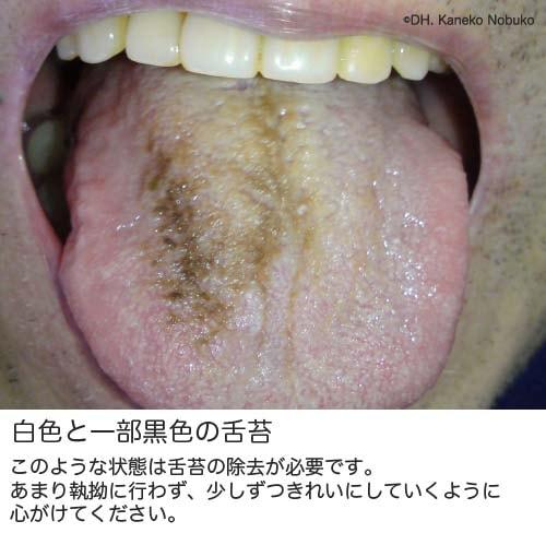白色と一部黒色の舌苔の実際の写真