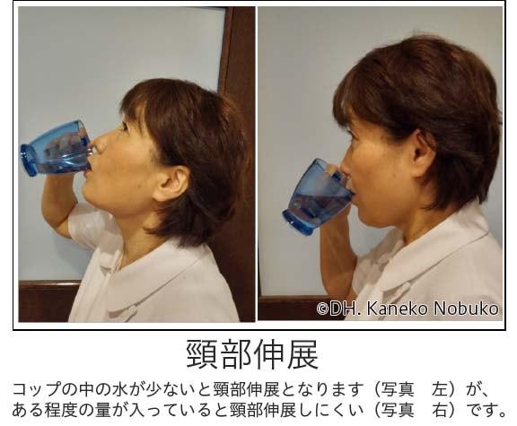頸部伸展説明写真