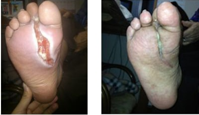 蜂窩織炎の写真と3か月で寛解した写真
