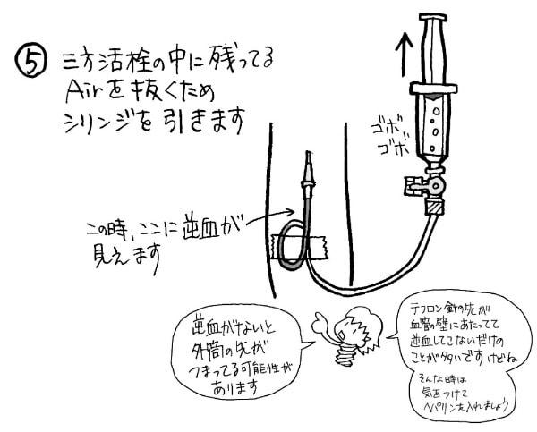 三方活栓の中の空気を抜くコツ