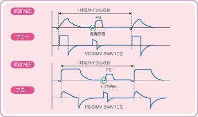 SIMV(+PS)の設定項目