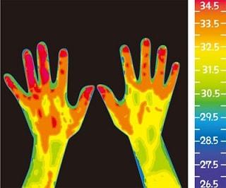 サーモグラフィの一例写真
