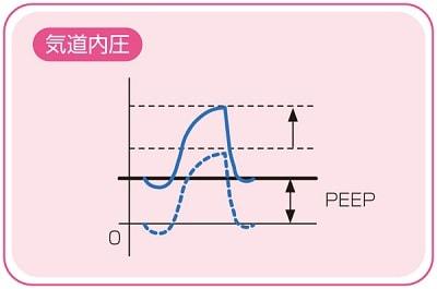 PEEP説明図