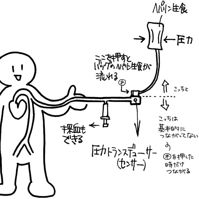 動脈ラインを確保する方法