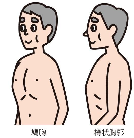 胸郭の異常