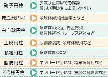 尿沈渣の円柱詳細説明表