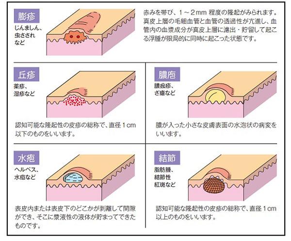 皮膚の局所状態の見方