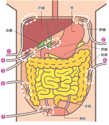 腹腔ドレーン挿入部説明イラスト