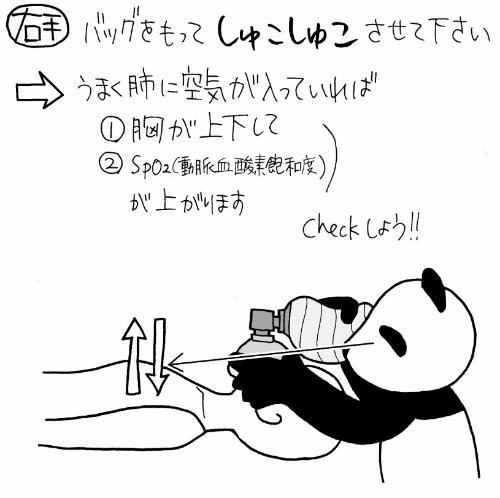 アンビューバッグの使い方・手順3