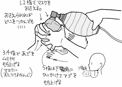 アンビューバッグの使い方・手順2