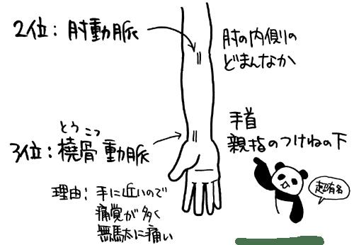 動脈採血の部位 肘動脈、橈骨動脈