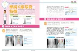 ナース専科2015年8月号『がん患者さんを感染から守る!』内容③
