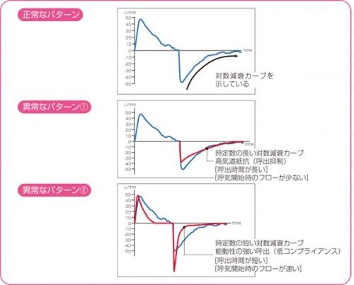 呼気フローの正常と異常なパターン
